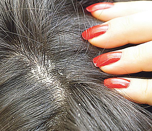Caspa en el cuero cabelludo c mo eliminar hongo de la - Eliminar hongos de la pared ...