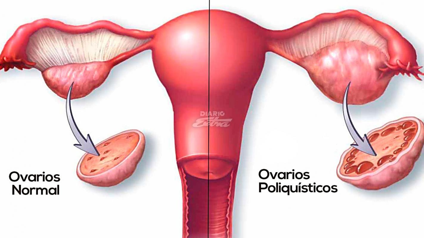 bajar de peso ovarios poliquisticos
