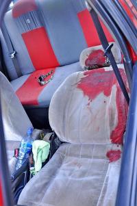 Matan a taxista de un balazo en la cabeza