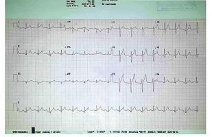 El electrocardiograma fue realizado en el Poder Judicial