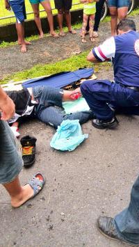 El indígena sufrió una fractura en la pierna izquierda