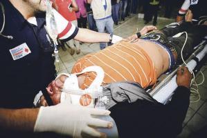 El motorizado fue enviado al hospital donde murió