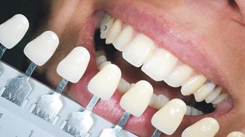 """""""Este material es capaz de destruir microbios y mantener a raya nuestra higiene bucal"""
