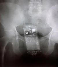 Una radiografía evidencia que una privada de libertad escondía el teléfono en sus partes íntimas