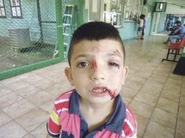 El menor fue llevado hasta el Hospital de Golfito con heridas en el rostro